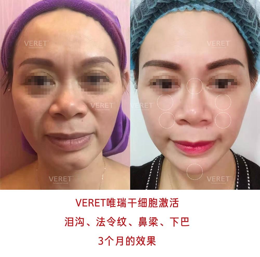VERET瑞士·唯瑞干细胞,用间充质干细胞刷新你的美容理念