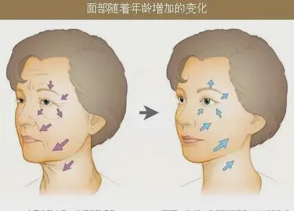 和妍医美-面部年轻化提升的是轮廓,降低的是年龄
