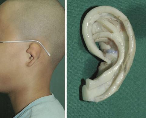 耳畸形再造哪种方法好?选直埋法、全包法还是medpor?