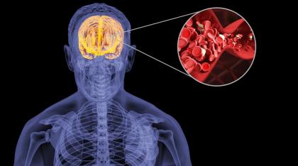 纳豆红曲胶囊的功效和作用是什么?帮助维稳血脂水平